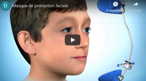 Masque de protraction faciale